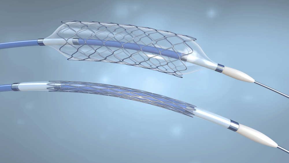 3d rendering of a medical balloon stent and catheter
